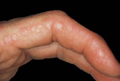 Muscle Weakness and tenderness and these skin lesions-image2.jpg