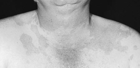 Cool  Dermatology Cases #2-image2.jpg
