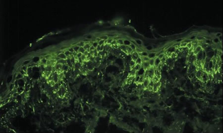 Immunofluorescence Patterns of Selected Dermatologic Diseases-image2.jpg