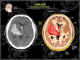 Intracranial hemorrhages-images-2-.jpg