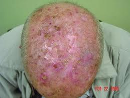 A Premalignant Scalp Lesion!-images.jpeg