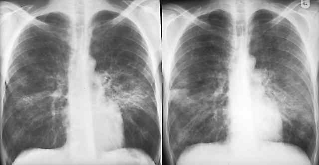 X ray lung, What's wrong?-infpcpverlth92_3.jpg
