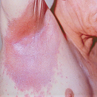 Dermatology Pictures for the CK Exam-inverse-psoriasis-armpit.jpg