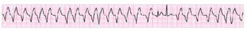 Diagnose this ECG?-jxf001f1.jpg