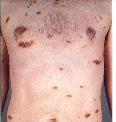 Dermatology Pictures for the CK Exam-kaposi-sarcoma-5481.jpg
