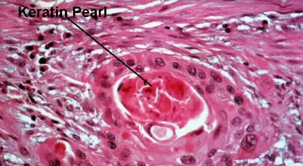 Esophageal Neoplasm Question-keratinpearl.jpg