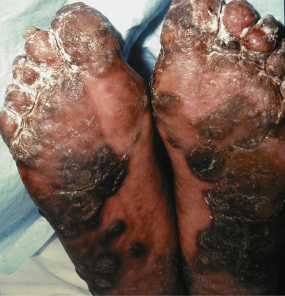 Dermatology Pictures for the CK Exam-keratoderma-blennoragica.jpg
