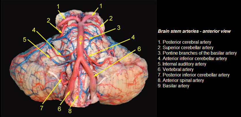 Neuroanatomy Two PONS questions-labeled-pons-gross.png