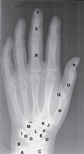 Fall on outstretched hand; which bone affected?-loadbinary.jpg