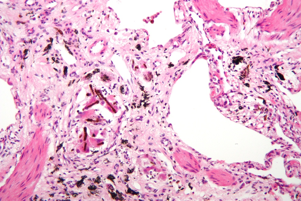 Died of respiratory disease (lung pathology micrograph)-lung-pathology.jpg