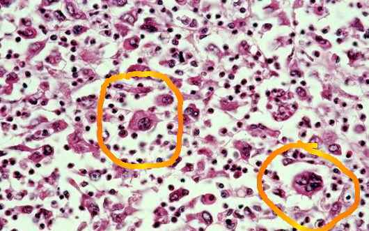 Metastatic lung cancer biopsy question-lungbiopsy2.jpg