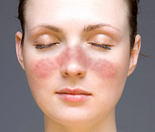 Test your knowledge #24! (Pathology)-lupus_facial_rash.jpg