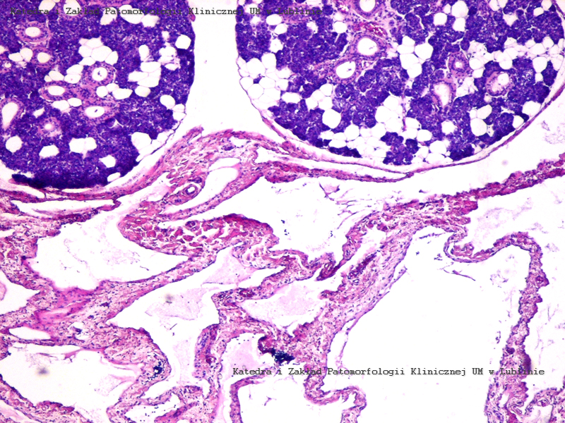 Histopathology slides from the neck of an infant?-m_1.jpg