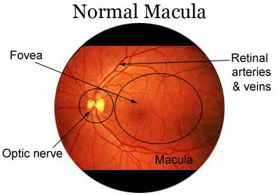 Dermatology Pictures for the CK Exam-macula.jpg