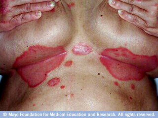 Dermatology Pictures for the CK Exam-mcdc22_inverse_psoriasis.jpg