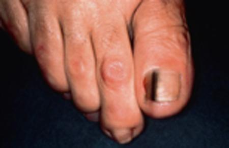 Dermatology Pictures for the CK Exam-melanoma.jpg