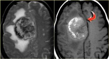 Brain Ct-melanomametastasis.jpg