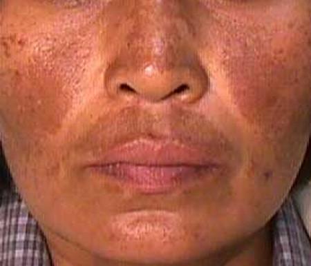 Spasemaster Q6-melasma-skin-rash-images.jpg