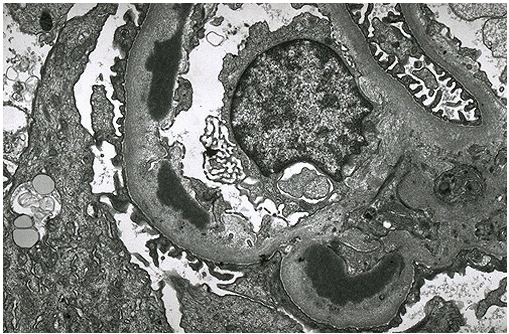 Nephrotic Syndromes Quick Summary and Histomorphology-membrane-inclusion.png