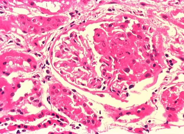Colon CA and Renal Disease-membrmicroscopic.jpg