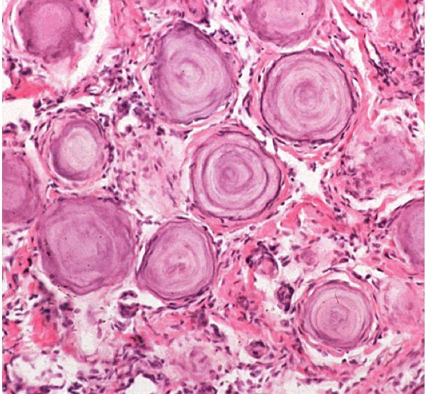 Brain Tumor High Yield Histopathology Images-meningioma_psammoma-bodies.png