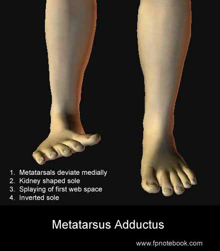 Metatarsus adductus vs club foot (talipes equinovarus)-metatarsus-adductus.jpg