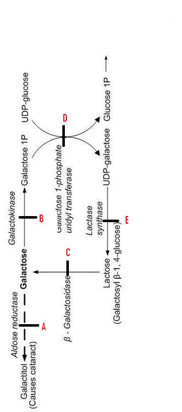 Mental retardation, Hepatosplenomegaly, & Cataract Diagnosis-mm.jpg