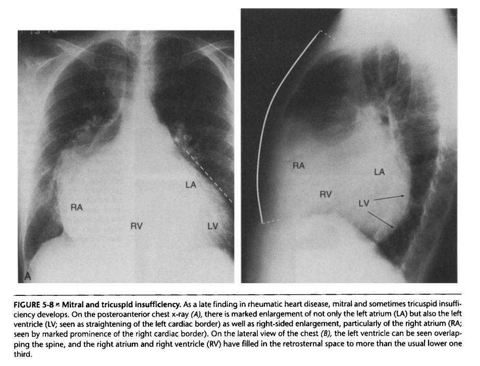 Essentials of Radiology - Cardiovascular System-mr.jpg