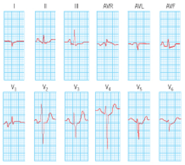 High Yield Electrocardiographs for the Step 2 CK Exam-ms-ekg.jpg