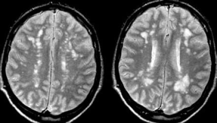 Radiology for CK-ms.jpg