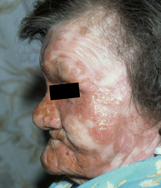 Dermatology Pictures for the CK Exam-mycosis-fungoides.jpg