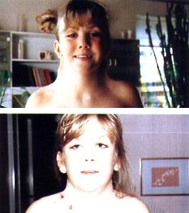 High yield images of typical Facies in dysmorphic children-neck_turner.jpg