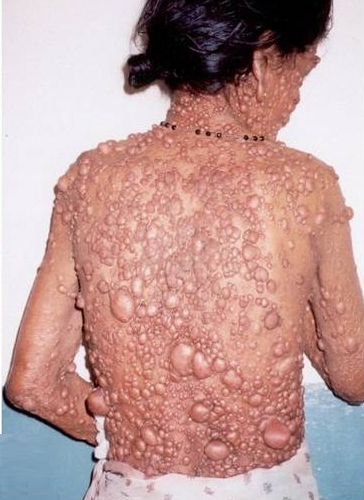 Dermatology Pictures for the CK Exam-neurofibromatosis-10.png