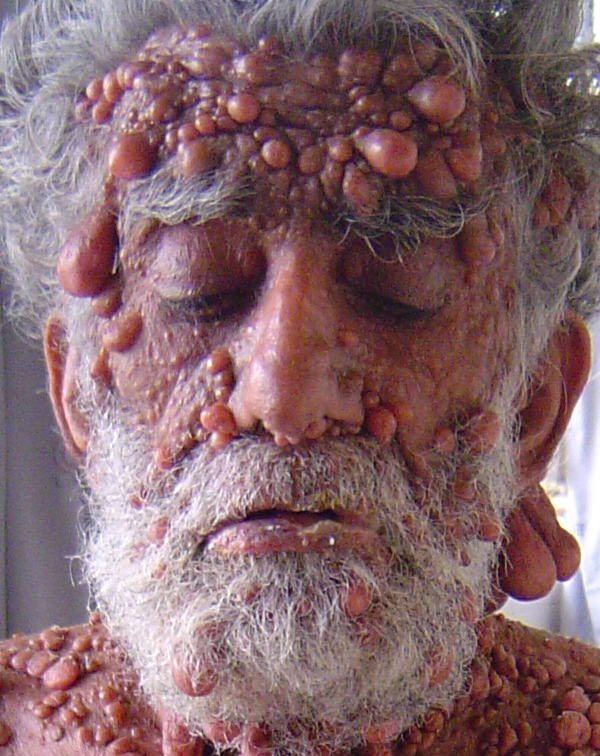 Dermatology Pictures for the CK Exam-neurofibromatosis_9_080424.jpg