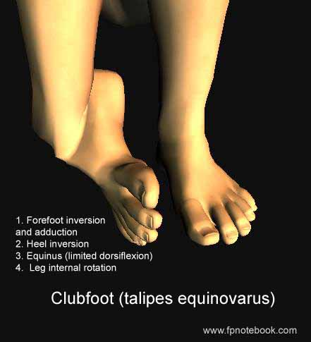 Metatarsus adductus vs club foot (talipes equinovarus)-orthopedsfootcf.jpg