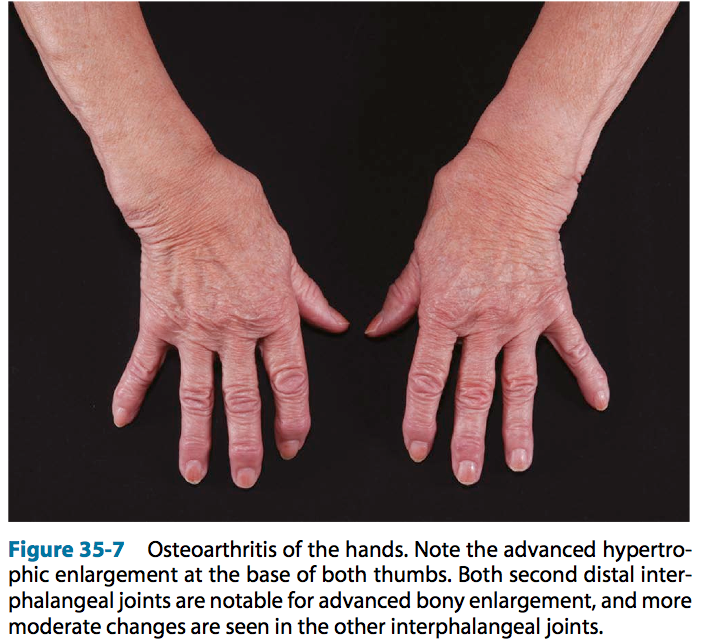 The hand in different diseases-osteoarthritis.png