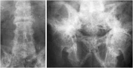 pain in pelvis and lower back-pagets_disease.jpg