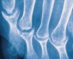 Radiology for CK-pencil-cup-psoriases.jpg