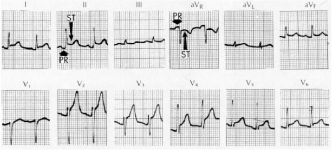 High Yield Electrocardiographs for the Step 2 CK Exam-pericarditis-ecg.jpg