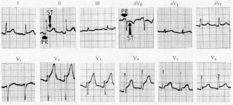 High Yield Electrocardiographs for the Step 2 CK Exam-pericarditis-ecg.jpg