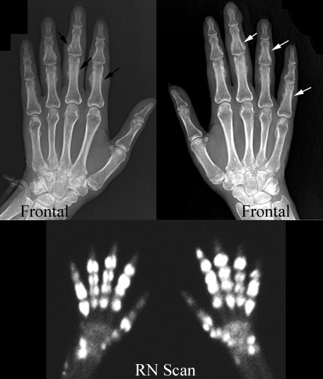 COPD and Wrist Pain, How to manage?-periosteal-reaction-hypertrophic-pulmonary-osteoarthropathy.jpg