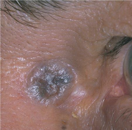 Dermatology Pictures for the CK Exam-pigmented-basal-cell-carcinoma27.jpg
