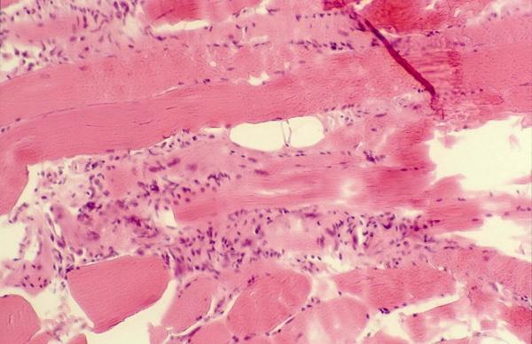 Polymyositis versus Dermatomyositis-polymyositis.jpg