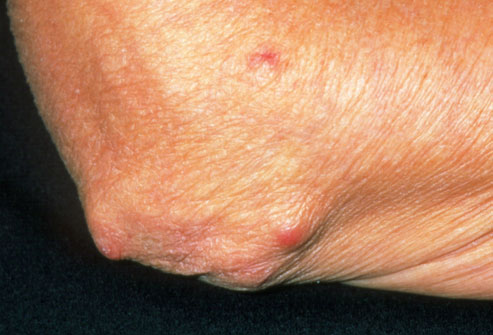 Dermatology Pictures for the CK Exam-princ_rm_photo_of_rheumatoid_nodules_on_elbow.jpg