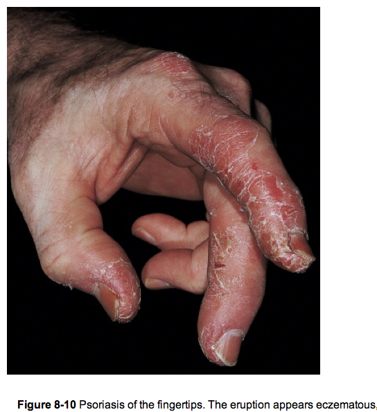 The hand in different diseases-psoriasis.png