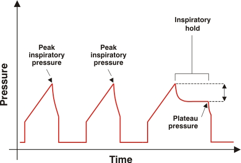 Measured Pulmonary Pressure!-pulmonary-pressure-graph.jpg