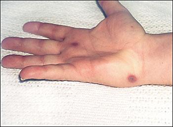 Cool  Dermatology Cases #2-pustule.jpg