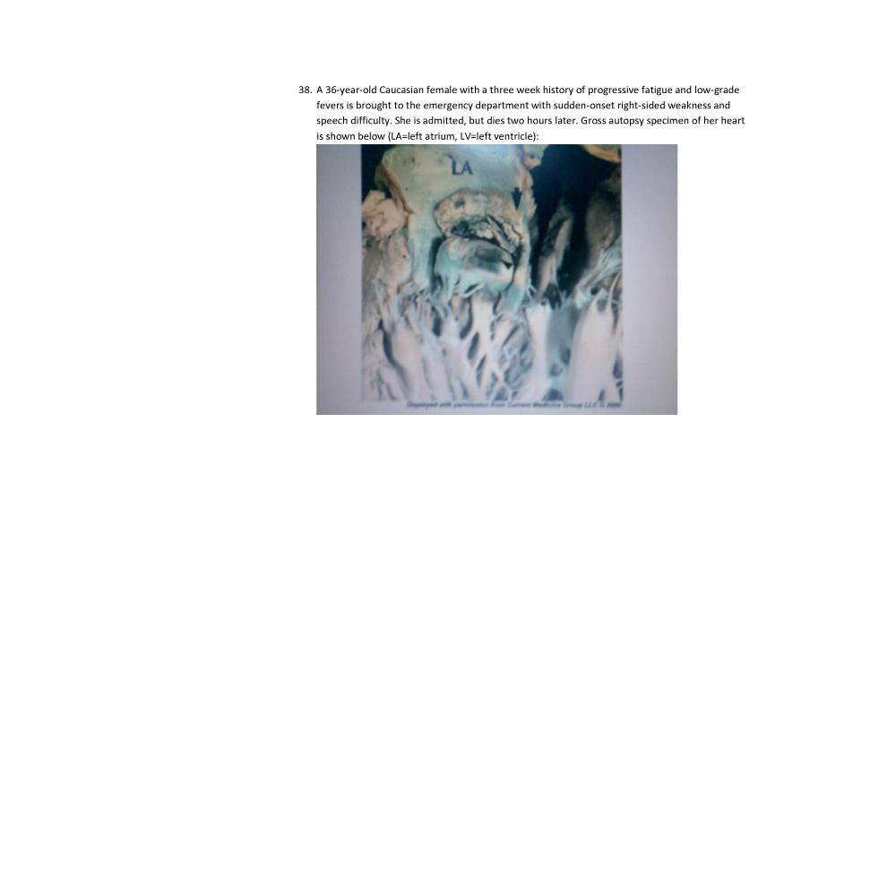 Neurological condition caused by heart valve problem.-question.png