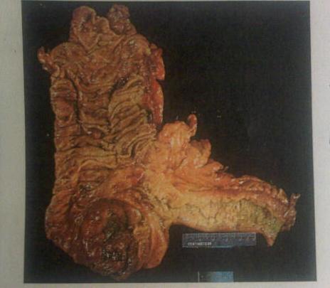 Colon Gross Pathology Image Question-question2.jpg