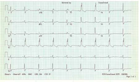 High Yield Electrocardiographs for the Step 2 CK Exam-rbbb.jpg